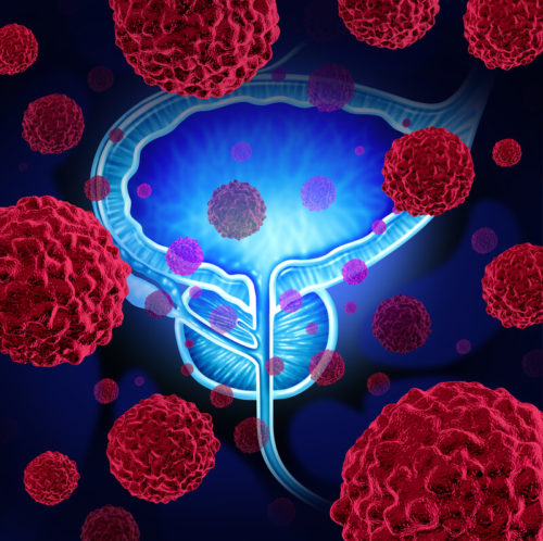 Does a history of Prostate Cancer affect arranging life insurance?