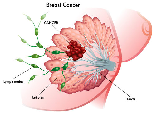 breast cancer graphic